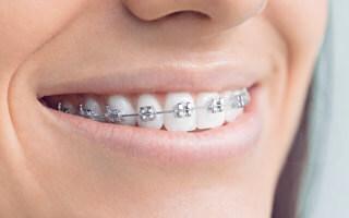 boy wearing metal braces with nice smile