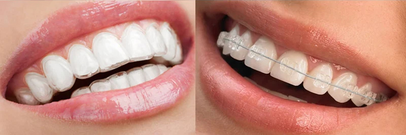 Comparison of clear invisalign vs braces