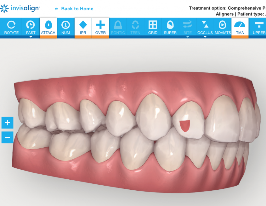 3d Invisalign model for treatment planning for clear aligners