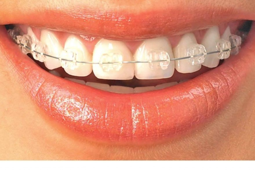 Clear braces for orthodontic treatment