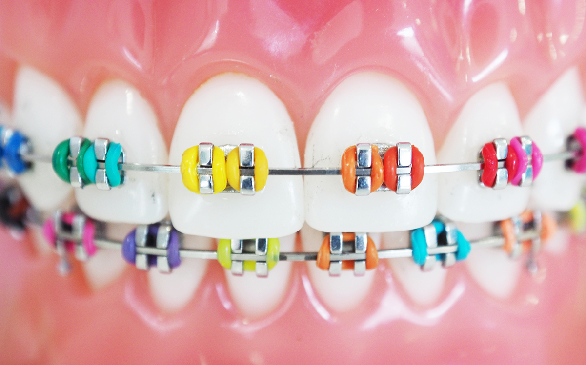 Colored Braces for orthodontic treatment in Cornelius, NC