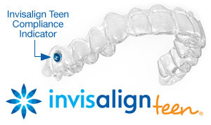 Invisalign teen clear aligner with compliance indicator